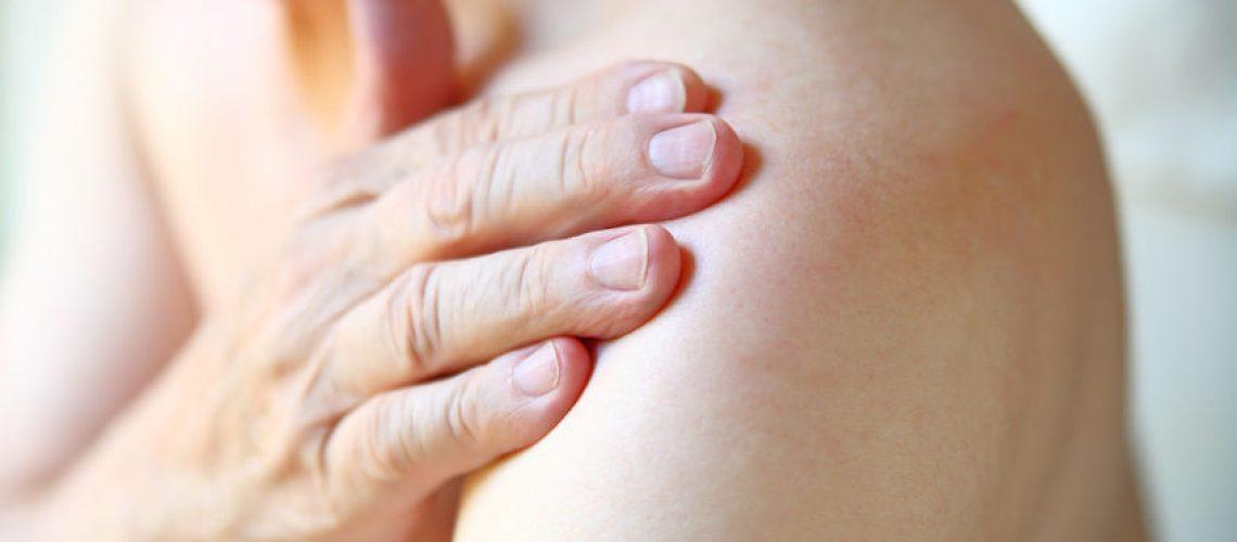 sintomas da bursite